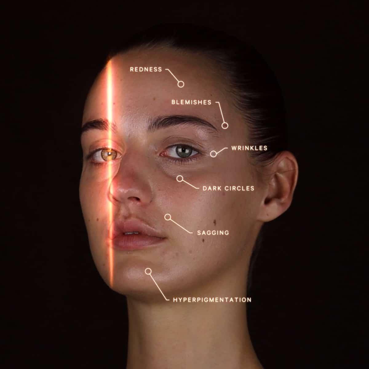 AI Skin Aanalysis